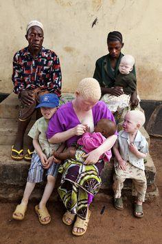 Shining a Light on Tanzania's Albinos ~ ©Liron Shimoni