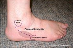 peroneal_tendonitis Ankle Strengthening Exercises, Knee Pain Exercises, Foot Pain Chart, Tendonitis Causes, Parkinsons Exercises, Ankle Anatomy, Tendon Tear, Plantar Fasciitis Shoes, Physical Therapy