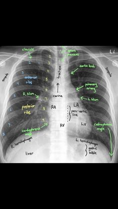 Very good Chest X-ray description Critical Care Nursing, Nursing Career, Nursing School Tips - NCLEX Quiz - Nurse Practitioner Cardiac Nursing, Nursing Career, Nursing Tips, Nursing Degree, Nursing Programs, Nursing Websites, Rn Programs, Nursing Assessment, Nursing Profession