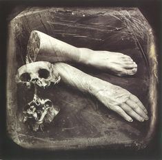 Joel Peter Witkin is an American photographer. His work often deals with such themes as death, corpses, and various outsiders such as dwarfs, transsexuals, hermaphrodites, and physically deformed people