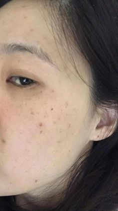 How to get Rid Of Brown Spots on Face #SmallBrownSpotsOnFace #BrownSpotsOnNose #BrownSpotsOnSkin
