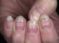 Horizontal Grooves In Nails Ridges