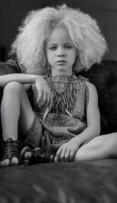 15 Albino Women And Girls with Gorgeous Natural Hair [Gallery] Black Albino Model, Mayonnaise Hair Treatments, Albino Girl, Curly Hair Styles, Natural Hair Styles, Africa People, Vintage Black Glamour, Blonde Curls, Hair Thickening