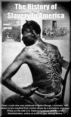 Black History Month - Zimbio After beatings, many African Americans would end up disfigured. This photo claims to be of a slave having been beaten, the identical photo is in on this board as being a photo of a man in the Holocaust as the result of medical experiments, you decide which, if either photo, is accurate.