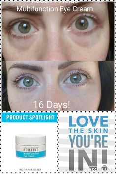 Rodan + Fields Multi-Function Eye Cream utilizes powerful peptides to minimize the look if crows feet and reduce the appearance of dark circles and puffiness. 60 day money back guarantee. Message me on pinterest @ R+Fskincare101 for more info.
