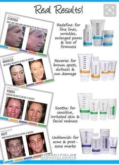 Check out Rodan and Fields Skin Care. There are 4 regimens to help any type of skin condition. If interested message my daughter Tracy Bianco Wasilewski. You can take a skin quiz at twasilewski.myrandf.com. These are real people with real results. Make treating your skin your New Years Resolution for 2017! The results really work and you deserve it! Check me out at twasilewski.myrandf.com