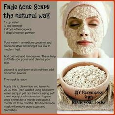 Homemade Acne Treatment - Home Remedies For Acne - Little Known Yet Highly Efficient Home Remedies to Cure Acne Once and For All ** More info could be found at the image url.
