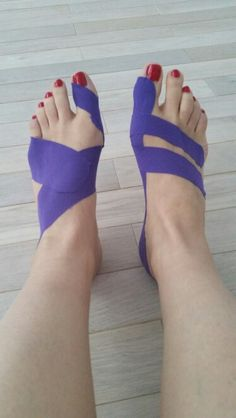 Kinesiology taping for bunion: functional (left) and fascial (right) techniques