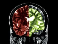Are brain changes associated with Alzheimer's (green) reversible? (Image: Medical Body Scans/Jessica Wilson/Photo Researchers/SPL)