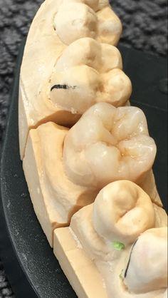Gradia overlay work Dental Life, Dental Art, Dental Teeth, Medical Dental, Dental Lab Technician, Dental Aesthetics, Dental Anatomy, Dental Laboratory, Dental Humor