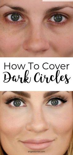 Dark Circles Makeup, Covering Dark Circles, Dark Circles Under Eyes, Dark Under Eye, Beauty Hacks Dark Circles, Eye Cream For Dark Circles, Concealer, Angela Lanter, Look Dark
