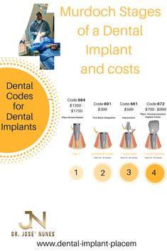 The Best Dental Implant Clinic in Perth. Dental surgery is his passion and he has spent many years mastering dental implant placements. Dentist Day, Dentist Near Me, Tooth Decay In Children, Affordable Dental Implants, Wisdom Teeth Funny, Teeth Implants, Dental Bridge, Receding Gums, Dental Crowns