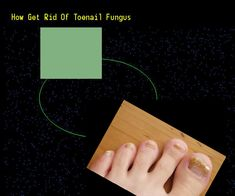 How get rid of toenail fungus - Nail Fungus Remedy. You have nothing to lose! Visit Site Now