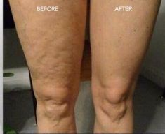 How to diminish cellulite and varicose veins? LUMINESCE ~ Your skins best friend! Latest adopage stem cell technology with 200 growth factors! Repair/restore your damaged skin and prevent future aging. Nu Skin, Natural Face, Natural Skin Care, Galvanic Body Spa, Cellulite Cream, Reduce Cellulite, Varicose Veins, Make Up Remover, At Home Spa