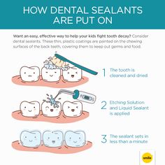 An easy, effective way to help your kids fight tooth decay, dental sealants are thin, plastic coatings that keep out germs and food away from their teeth.
