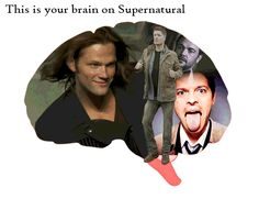 (gif) This is your brain on Supernatural.