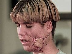 Lance Kirklin, student at Columbine High School, who was shot five times outside of the school, which made him later have his jaw and face rebuilt with bone and tissue from his leg as well as titanium. He saw Daniel Rohrbough take his last breath before he himself blacked out. #columbine