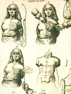 Armamentarium Chiruigicum (1655) by Joannis Scultetus  This is an illustration of an early mastectomy with the control of bleeding by cautery