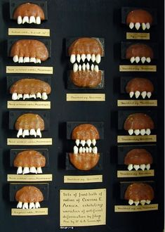 Shaped Teeth from Mozambique, Malawi and Tanzania, before 1910.