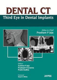 Basics of dental technology a step by step approach pdf dental dental ct third eye in dental implants pdf fandeluxe Gallery