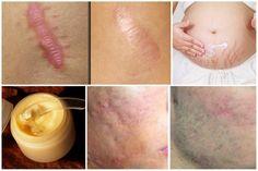 Sabemos que no es fácil eliminar las cicatrices del cuerpo; pues algunas suelen ser muy complejas por accidentes u operaciones, hasta las más sencillas por pequeñas cortadas. Existen centros de estéticas que ayudan a eliminar cicatrices de la piel, pero usan láser yquímicos que generan reacciones secundarias en la piel, como irritación. Alergias e incluso …
