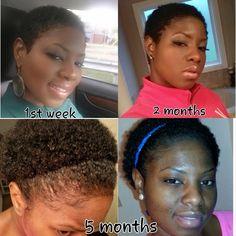 #BigChop #TWA Twa Hairstyles, Short Black Hairstyles, Natural Hairstyles, Natural Hair Transitioning, Transitioning Hairstyles, Natural Hair Growth, Natural Hair Journey, Natural Honey, Natural Beauty