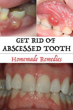 Get Rid of Abscessed Tooth - Timeless beauty tricks