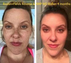 ***WHY*** ...COVER IT UP when you can CLEAR IT UP?!? Check out Lauren's GORGEOUS results using Rodan + Fields Award Winning skincare for just 4 months!!! Hello RADIANT Glow!!!