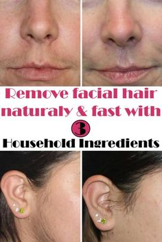 Natural way to remove facial hair