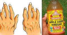 Sólo necesitarás 2 ingredientes para tratar la artritis, la gripe y todos los problemas estomacales!! – Viviendo Saludable