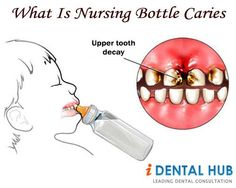 Nursing caries is a unique pattern of dental caries in very young children due to prolonged and improper feeding habits.
