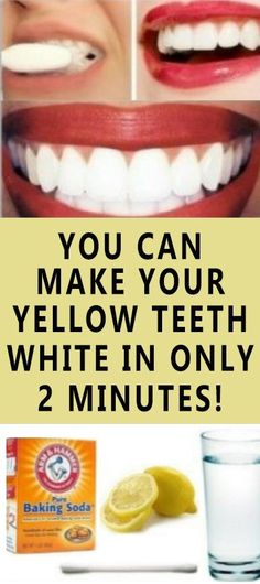 """Now You Can Make Your Yellow Teeth White In Only 2 Minutes! Now You Can Make Your Yellow Teeth White In Only 2 Minutes! """"Healthy and white teeth are what everyone wants. But to achieve this, it can. Get Whiter Teeth, Teeth Whitening Remedies, Skin Whitening, Receding Gums, Ketogenic Diet For Beginners, White Teeth, Diet Plans To Lose Weight, Reduce Weight, Loose Weight"""