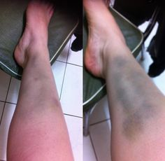 Carmen attcha roller derby Geelong bruise