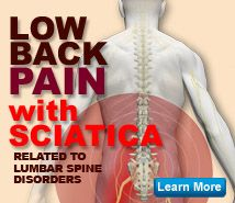 Low back pain with sciatica is among the most common medical conditions. Learn more about the causes, warning signs, some prevention tips and the most effective treatment options.