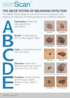 Skin Cancer Information That Could Save Your Life | The ABCDE System of Melanoma Detection | #skincancerawareness