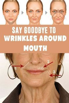 You don't have to pay for expensive professional treatments to reduce the appearance of deep wrinkles around your mouth. You can make a few lifestyle changes or try natural or over-the-counte…