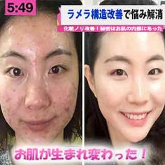 Skin beauty is one of the most sensitive areas for women. Weather conditions, misused cosmetic products or genetics may cause deterioration of the skin structure. Advantages Of Green Tea, Skin Care Masks, Skin Structure, Summer Skin, Body Makeup, Flawless Skin, Partner, Beauty Skin, Body Care