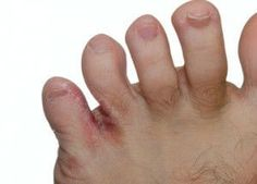 3 Painful Foot Conditions and How to Treat Them Naturally
