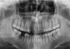 Themahoek tandarts Halloween Face Makeup, Seeds