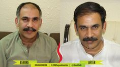 Hair Transplant Result in PAKISTAN | 30% off on Hair Transplant | Dr Rana Irfan