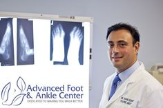 Welcome to Footadvice! Do you have heel pain? The cause of heel pain is a lack of good nutrition. Along with being sedentary and sleep deprivation it can lead to too much stress, which diminishes your overall healing potential. To get all this information, Footadvice is the best to cure your problem.