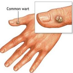 Herbal remedy for warts