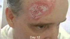 13 Best Curaderm images in 2013 | Cancer, Cancer cure, The Cure