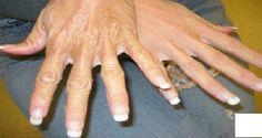 Você já parou para pensar como as mãos sofrem?Elas vivem em contato com vários produtos químicos, como detergente, sabão, entre outros produtos. E qual o