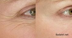 Creative and Modern Ideas: Anti Aging Crows Feet skin care masks recipes.Anti Aging For Men Dr. Oz anti aging for men dr. Anti Aging Tips, Anti Aging Skin Care, Beauty Care, Beauty Hacks, Beauty Tips, Beauty Products, Skin Products, Home Remedies For Wrinkles, Creme Anti Rides