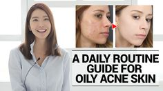 Essential beauty tips for you : How to cure oily but dehydrated acne prone skin? If you have oily acne prone skin, check this special solution now.