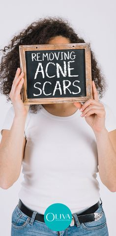 Looking for NO Scars Face Cream for Woman, Buy NO Scars Face Cream for Woman on discount in India. NO Scars Face Cream is best for Scar removal. Acne Scar Removal Treatment, Cystic Acne Treatment, Home Remedies For Acne, Acne Remedies, Ingrown Hair Remedies, Hair Scrub, How To Get Rid Of Acne, Acne Scars, Skin Problems