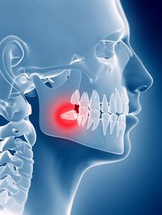 Lindenbrook Dental Care is a comprehensive family dentist office in Flint, MI. Call today to schedule a dental appointment! Dental Surgery, Dental Implants, Dental Hygienist, Tooth Extraction Care, Bone Infection, Dentist Day, Dental Posters, Wisdom Teeth Removal, Emergency Dentist