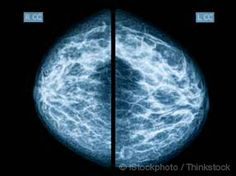 mammograms - more or less of a benefit?
