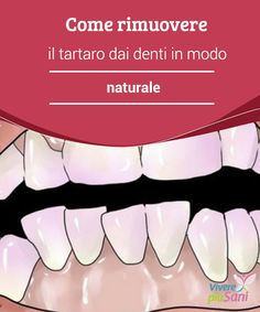 Come #rimuovere il tartaro dai denti in modo naturale Milioni di persone hanno il #tartaro sui #denti. Proprio così, se vi affligge questo #problema, dunque, sappiate che siete in buona compagnia. La #placca batte Beauty Care, Beauty Hacks, Hair Beauty, Healthy Beauty, Health And Beauty, Restorative Dentistry, Dental Services, Natural Medicine, Face And Body